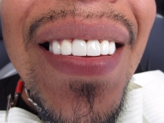 Dental Implant After Image